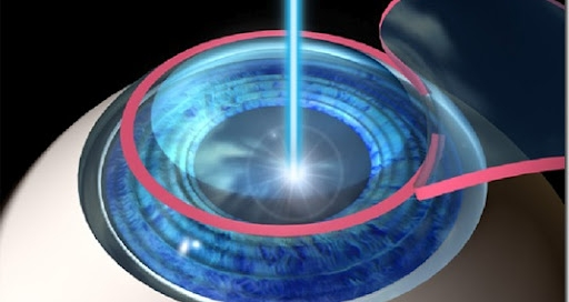LASIK in Lake Forest Il, Glenview IL, and Northbrook Il