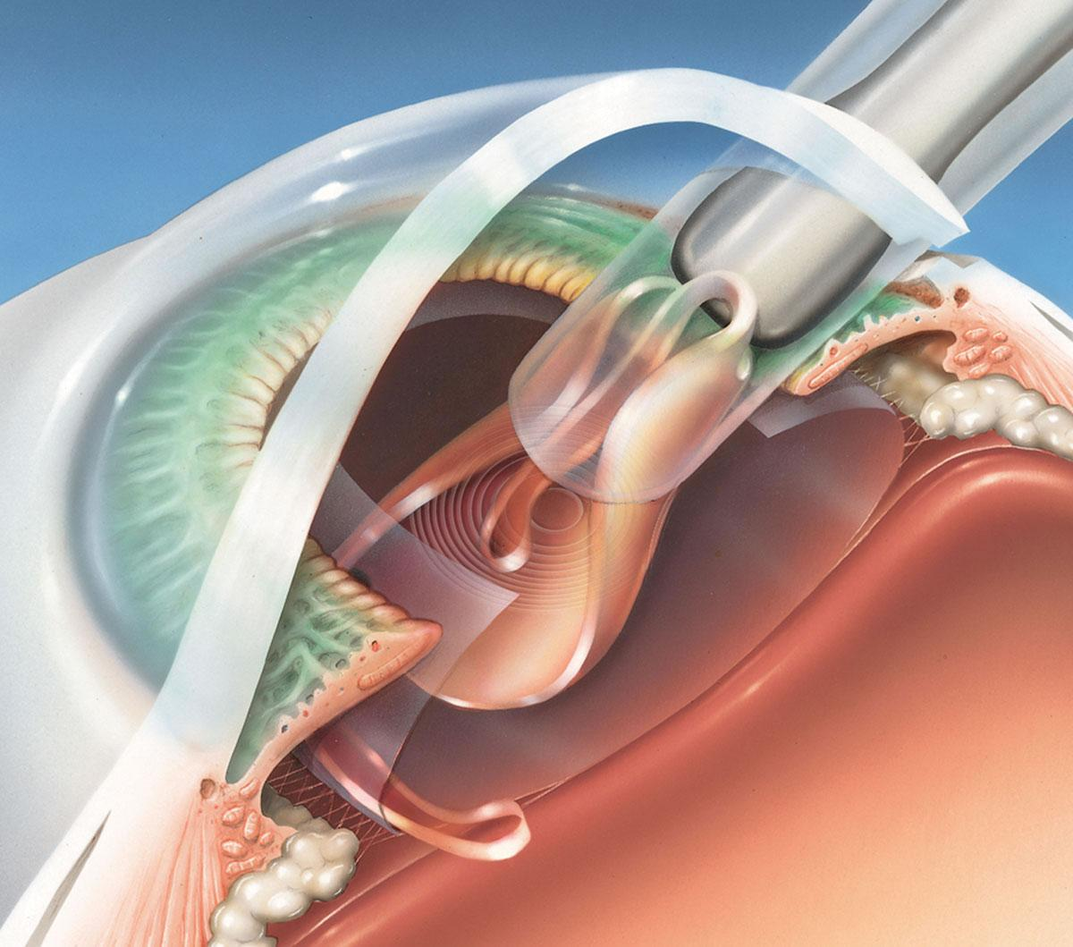 Day of Cataract Surgery - Ophthalmologist | Eye Doctor